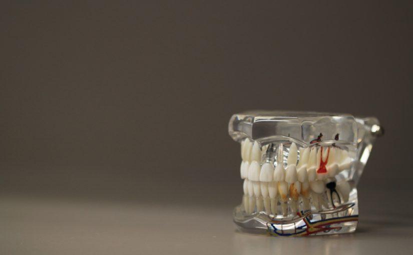 Zły sposób odżywiania się to większe ubytki w jamie ustnej oraz również ich brak